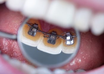 invisible lingual braces on dental mirror